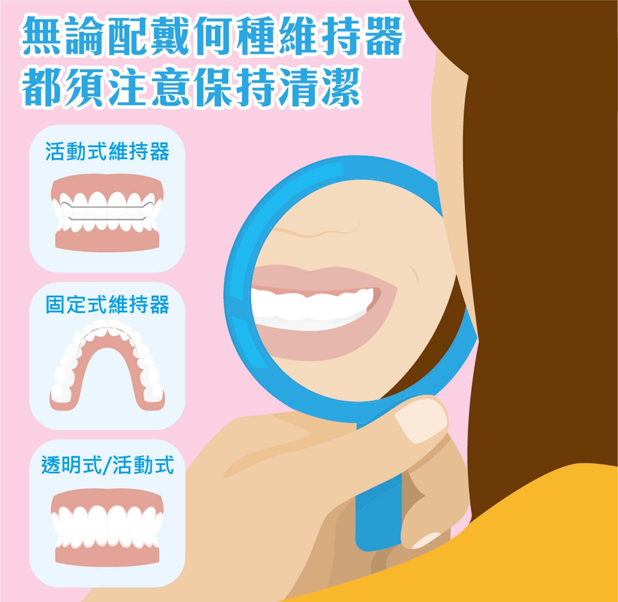配戴維持器須保持口腔清潔。